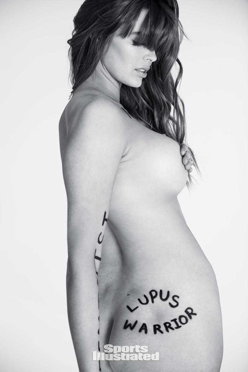 lupus-ihow.jpg