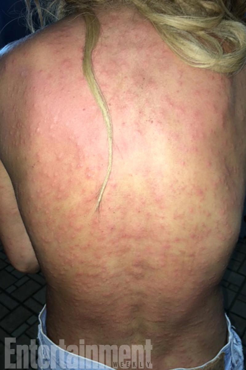 anastasia-ashley-bug-bites1.jpg